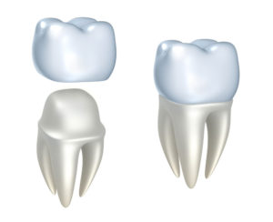 Dental Crowns and Bridges Boise ID | Smiles on State Street